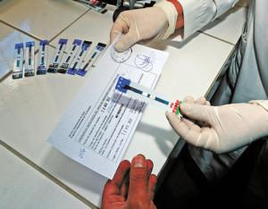 Prueba rápida VIH